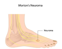 Where Is Pain from Morton's Neuroma Located?