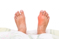 Possible Causes of Gout