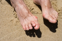 Is Hammertoe A Deformity?